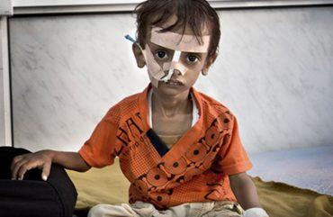 yemen-starvation